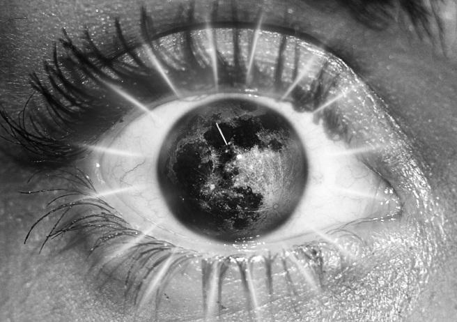 eye-1192189